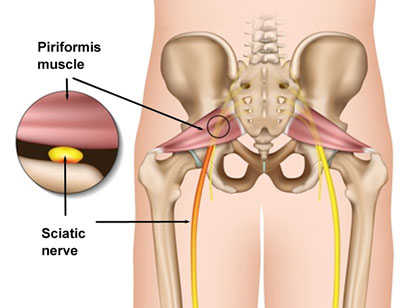 Piriformis Syndrome Healing Earth Therapy Canmore